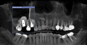maxillaris 6 mois a